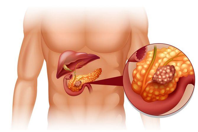 胰腺癌不绝望
