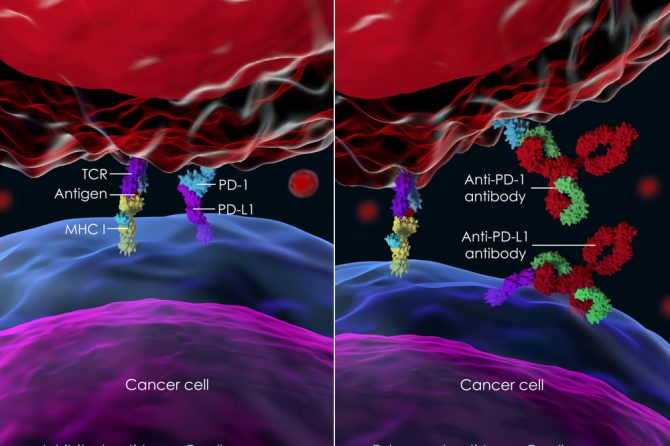 免疫治疗为末期癌患者燃希望