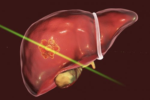 liver-ablation-therapy