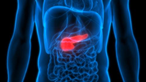 膽囊瘜肉會不會變成癌症?