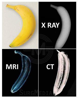 X-Ray、電腦掃描、磁力共振