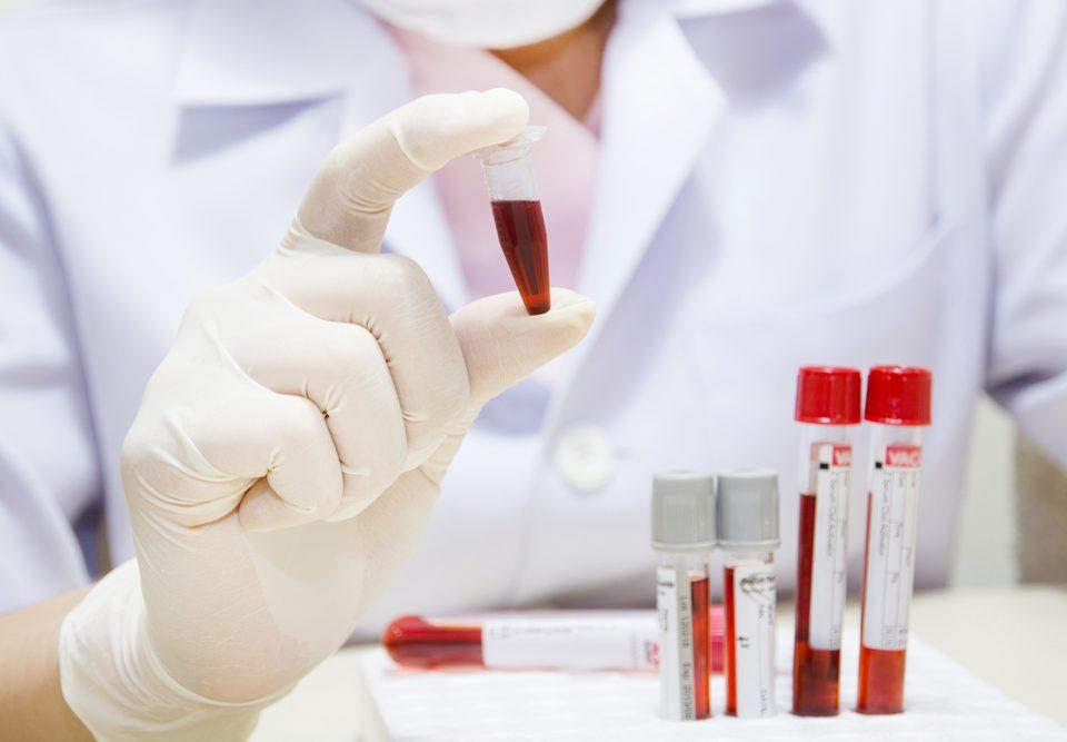 """关于癌胚抗原,这篇""""癌指数""""解读我给满分!(附各癌症种类的临床肿瘤标记应用)"""