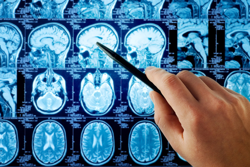 腫瘤電場治療膠質母細胞瘤
