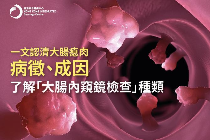 【大腸瘜肉全解構】點解要做大腸癌篩查?認識大腸瘜肉病徵、診斷及治療方法
