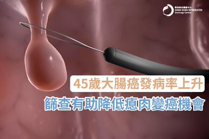 良好生活習慣 預防大腸癌