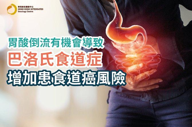 【食道腺癌】胃酸倒流喉嚨像火燒?認識GERD及巴洛氏食道症致癌風險